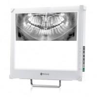 Monitor z kamerą wewnątrzustną . Pozwala na lepszą komunikację pomiędzy lekarzem i pacjentem